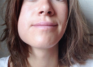 Îngrijirea gurii după vizitarea medicului dentist