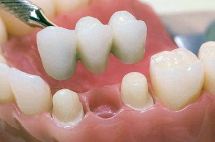 Denturi fixe