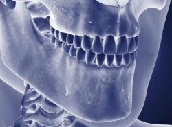 Osteomielita maxilarului