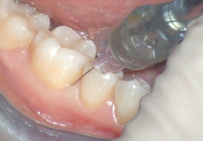 Intr-o anesthesie intraligamentară