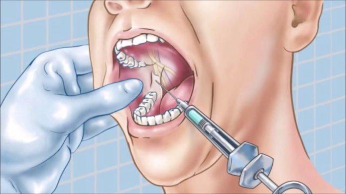 Injectarea de gume