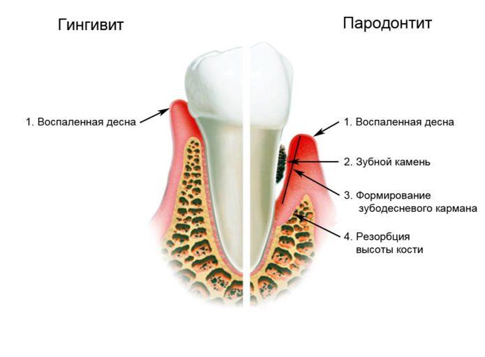 Boli ale dinților și gingiilor