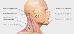 Inflamatia ganglionilor limfatici
